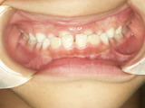 子供の歯並び・反対咬合・床矯正・小児歯列矯正・小児矯正