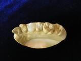 最新歯科治療 セレック 模型