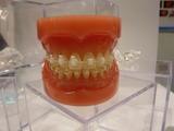 日本矯正歯科学会 目立たない矯正装置