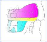 ムーシールド 反対咬合(受け口)の早期初期治療 矯正装置
