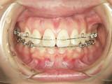 矯正歯科 その2