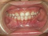 子供の歯並び・反対咬合・床矯正・小児歯科・小児矯正