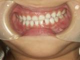 子供の歯並び・小児歯科・小児矯正・子供の反対咬合
