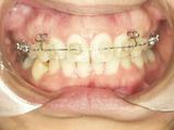 矯正歯科3