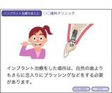 インプラント 口腔ケア 摂食治療