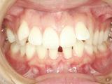 矯正歯科 歯列矯正 きれいな歯並び