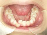 子供の歯並び・小児歯科・床矯正・小児歯列矯正・小児矯正