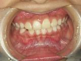歯列育形成 その3