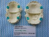 子供の歯並び・歯列育形成・床矯正・子供の歯列矯正・小児矯正10