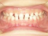 大田区蒲田反対咬合受け口小児歯科小児矯正虫歯予防歯並び