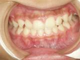 歯列育形成 その2