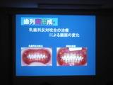 子供歯並び小児矯正床矯正