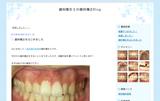 歯科衛生士 歯並び 矯正日記 ブログ