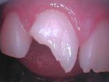 コンポジットレジンダイレクトボンディング白いつめる最新虫歯治療
