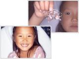 子供の歯並び・歯列育形成・床矯正・子供の歯列矯正・小児矯正