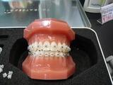 日本矯正歯科学会 目立たない矯正装置 ジルコニア