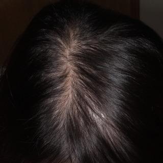 薄毛ミノタブ201502