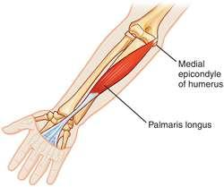 palmaris-longus