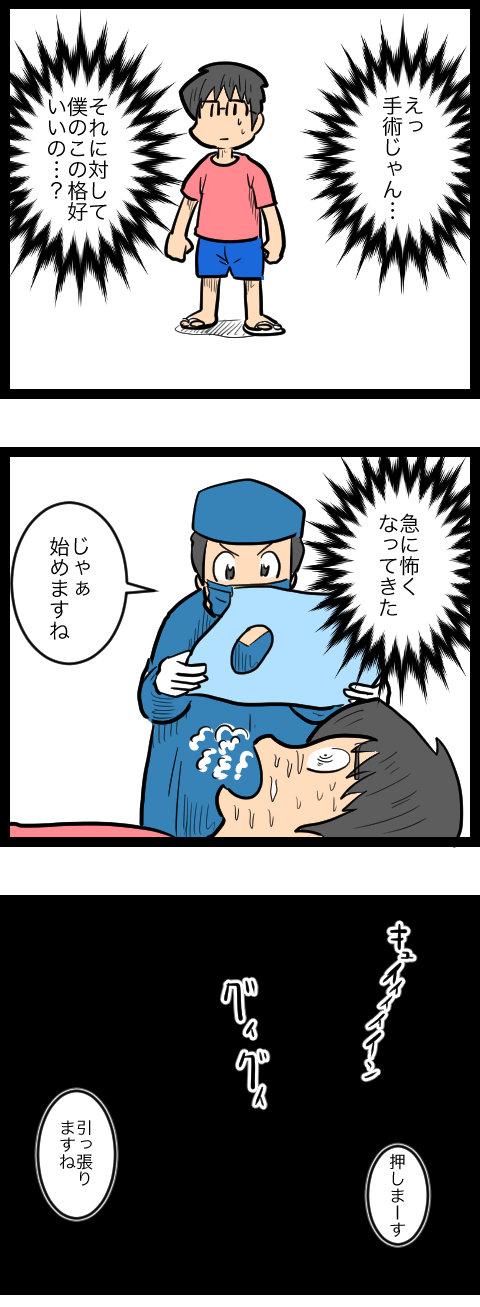 親知らず_3