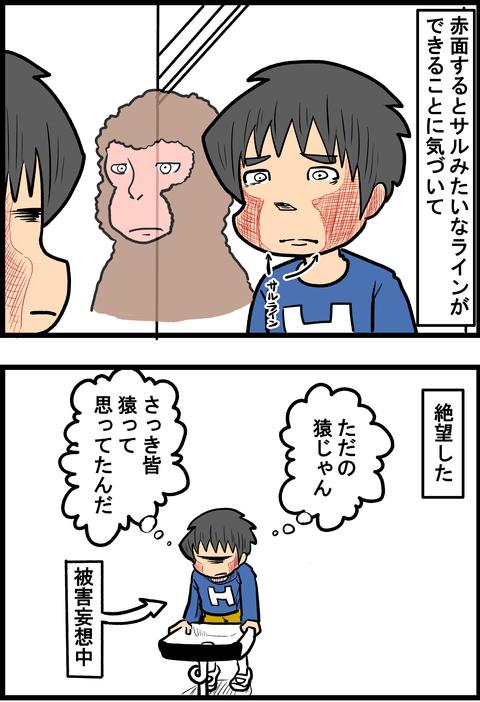 頬が赤い苦悩2_3