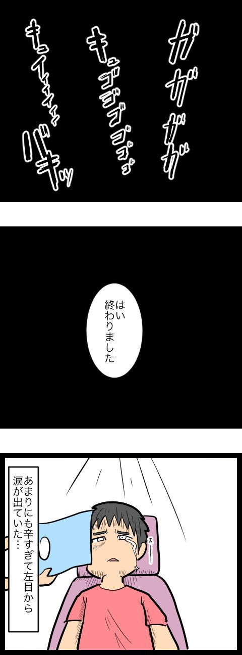 親知らず_4