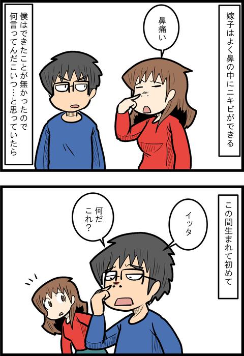 鼻にきび_1