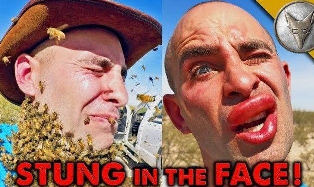【動画】 ミツバチの群れに顔面を刺されるとこうなる!! 腫れて魅惑の唇に!!