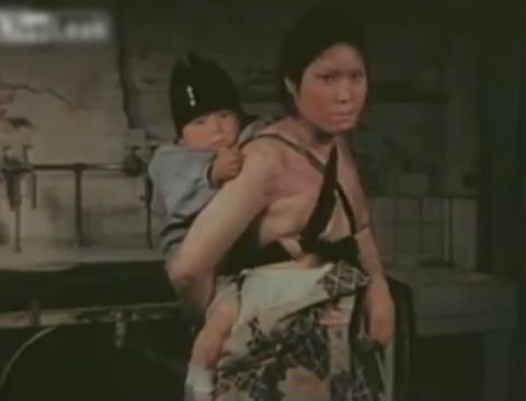 【閲覧注意】広島原爆被害者の1945年の生の映像