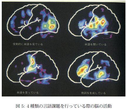 言語活動と脳