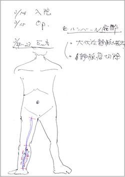 下肢静脈瘤手術説明きれいめ