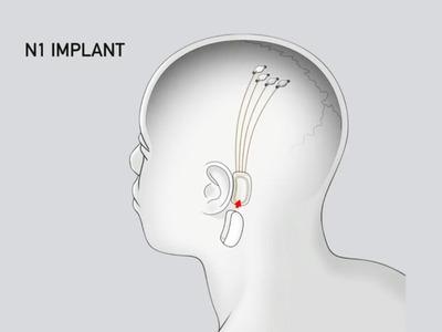 neuralink-n1-diagram_1280x960