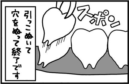 20170511-8