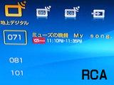 RCA画像