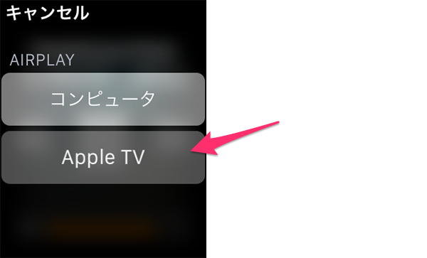 AppleWatchRemote28