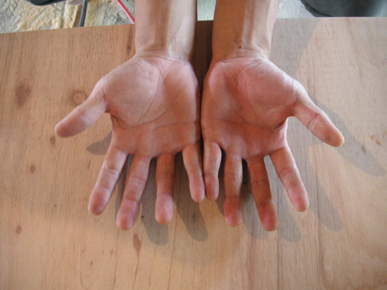 sizensozai 白井くんの手。 マツミの新しい手。 元気な手。 そう元気な手。 これか..