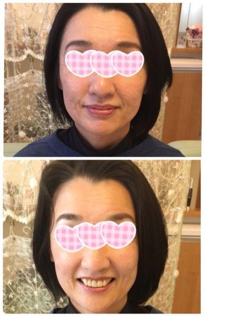 顔たるみ解消,シワ解消,ノーファンデつや肌,表情筋トレーニング,o0480064113508954094