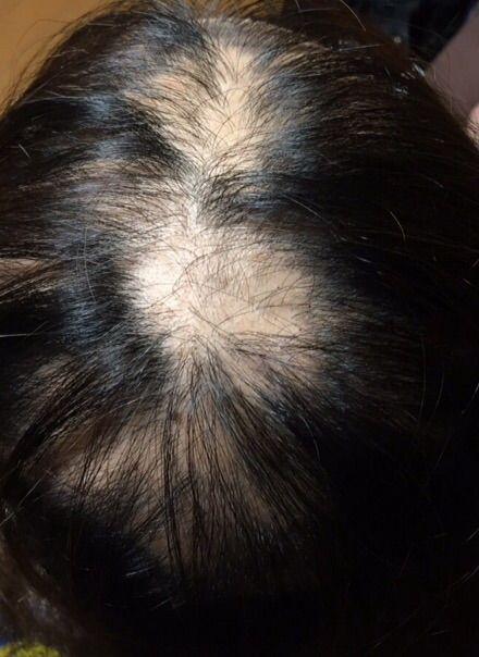 脱毛 型 多発 円形 症 円形脱毛症の多発型とは?単発型との違いについても解説!
