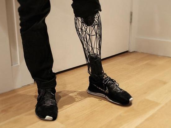 3D 義足