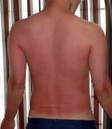 紫外線火傷