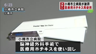 【危険】医療用ホチキスを使い回し…北海道・小樽市立病院