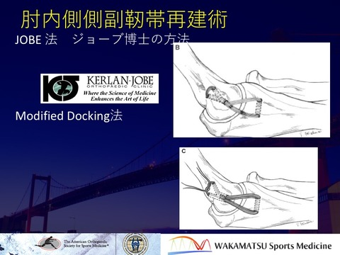 Jobe method docking method