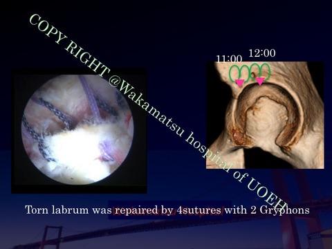 SIFFH labral repair