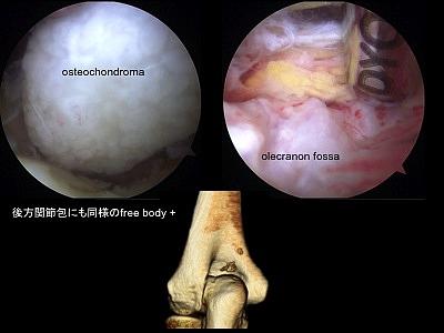 すべて摘出したあとのレントゲン写真です。 肘滑膜性骨軟骨腫症の報告は少... 2010年最難関手