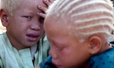 dnews-files-2015-03-albino-africa-150302-670-jpg