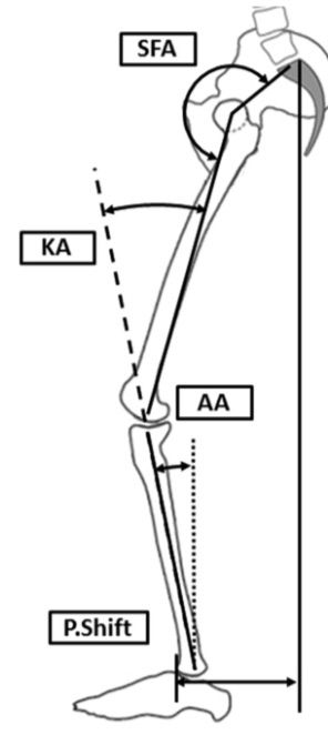 Spinal_deformityに関するreview_Neurosurg__pdf(3___16ページ)