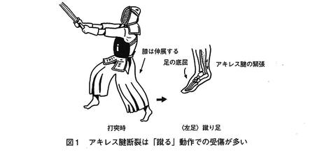 Achilles-tendon_001