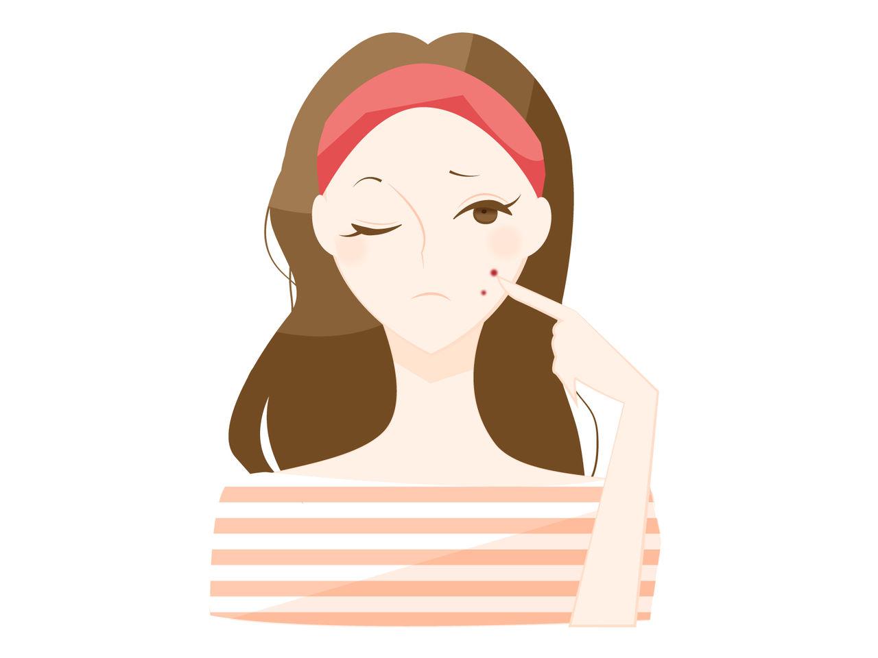 吹き出物 原因 の 顎