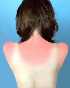PageImage-442032-2343046-6688-Sunburn_in_Naples_Final