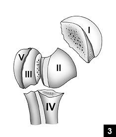 上腕骨近位端骨折~分類、手術適応、後療法 : 脳卒中になら ...