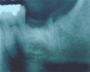 抜歯即時1